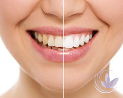 TOOTH-WHITENING-2