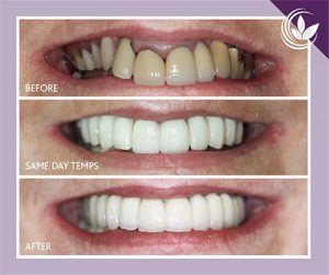 earley-dentist-new-fb-campaign-02